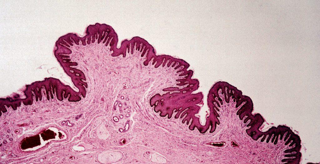 microbioma de la piel
