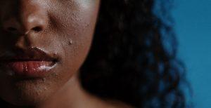 tratar la piel congestionada