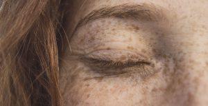 Dark Spots Tips Remedies